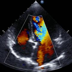 Transthoracic two-dimensional color Doppler echocardiography. Credit: Shutterstock.